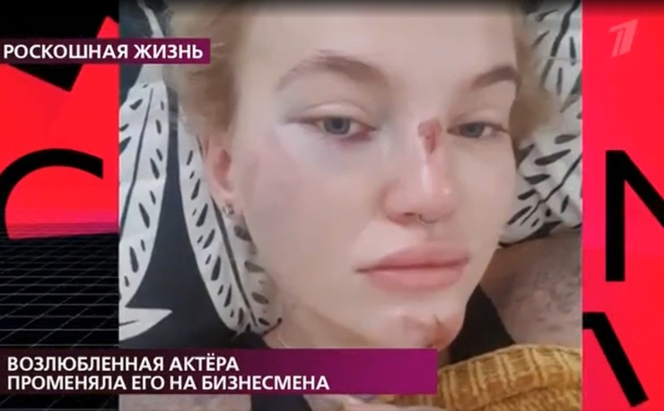 Виктория показала травмы, полученные от актера