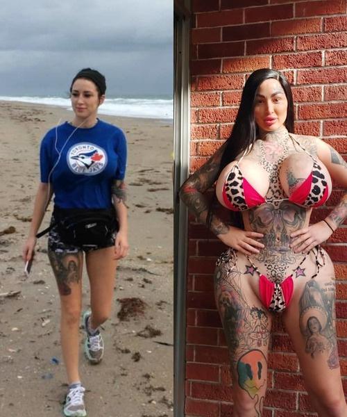 Шары вместо груди и ягодиц: канадская фетиш-модель удивляет внешним видом