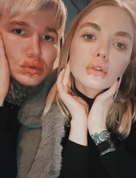 С губами экспериментируют не только девушки, но и парни