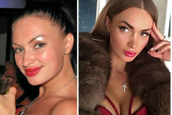 Стиль: Боня подтянула лицо, а Романец несколько раз переделывала нос – фото №8