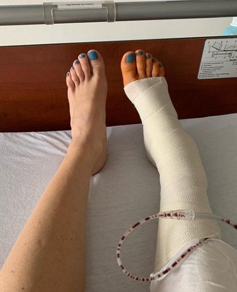 Тотьмянина попала в больницу с травмой ноги